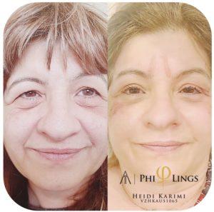 Eyelid Lift | eyelid lift surgery | eyelid surgery melbourne reviews